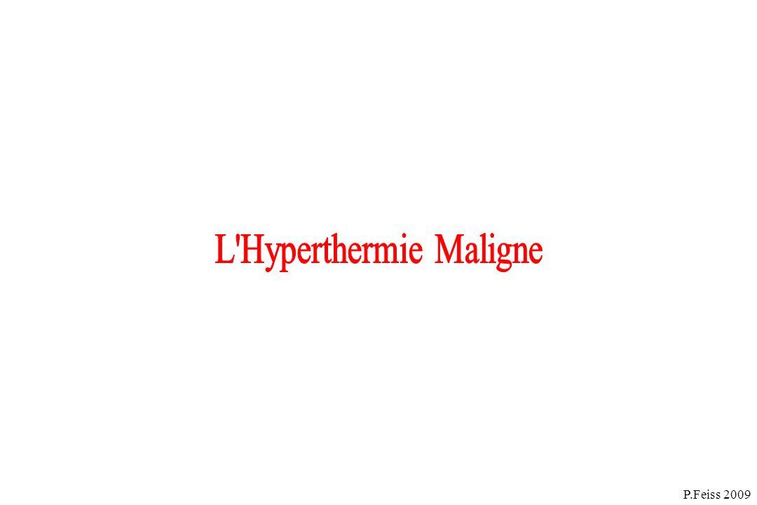 HM et myopathies :carnityl palmityl transférase II, myopathies mitochondriales, myotonie congénitale,hyperkaliémie périodique familiale, central core disease, myopathie de Duchenne….