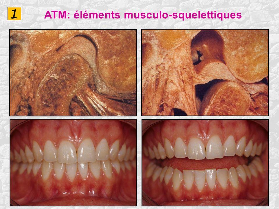 1 ATM: éléments musculo-squelettiques