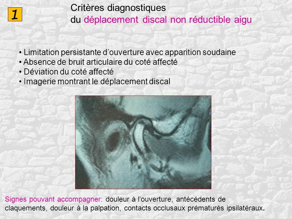 1 Critères diagnostiques du déplacement discal non réductible aigu Limitation persistante douverture avec apparition soudaine Absence de bruit articul