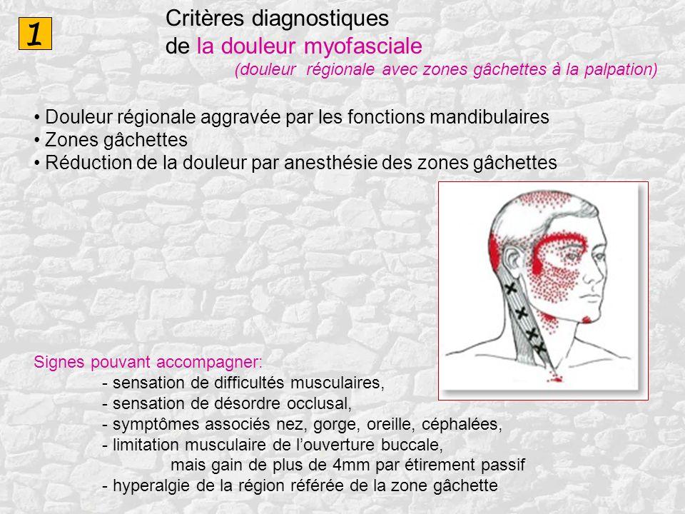 1 Critères diagnostiques de la douleur myofasciale (douleur régionale avec zones gâchettes à la palpation) Douleur régionale aggravée par les fonction