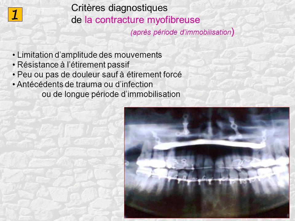 1 Critères diagnostiques de la contracture myofibreuse (après période dimmobilisation ) Limitation damplitude des mouvements Résistance à létirement p