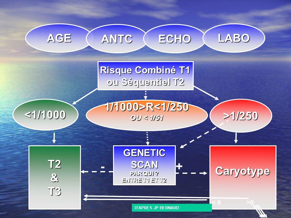 AGE ANTCECHO LABO Risque Combiné T1 ou Séquentiel T2 <1/1000>1/250 1/1000>R<1/250 OU < 1/51 T2&T3 GENETIC SCAN PAR QUI ? ENTRE T1 ET T2 Caryotype - +