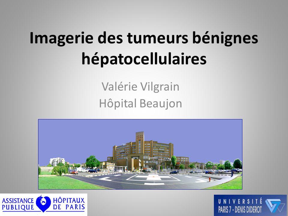 Imagerie des tumeurs bénignes hépatocellulaires Valérie Vilgrain Hôpital Beaujon