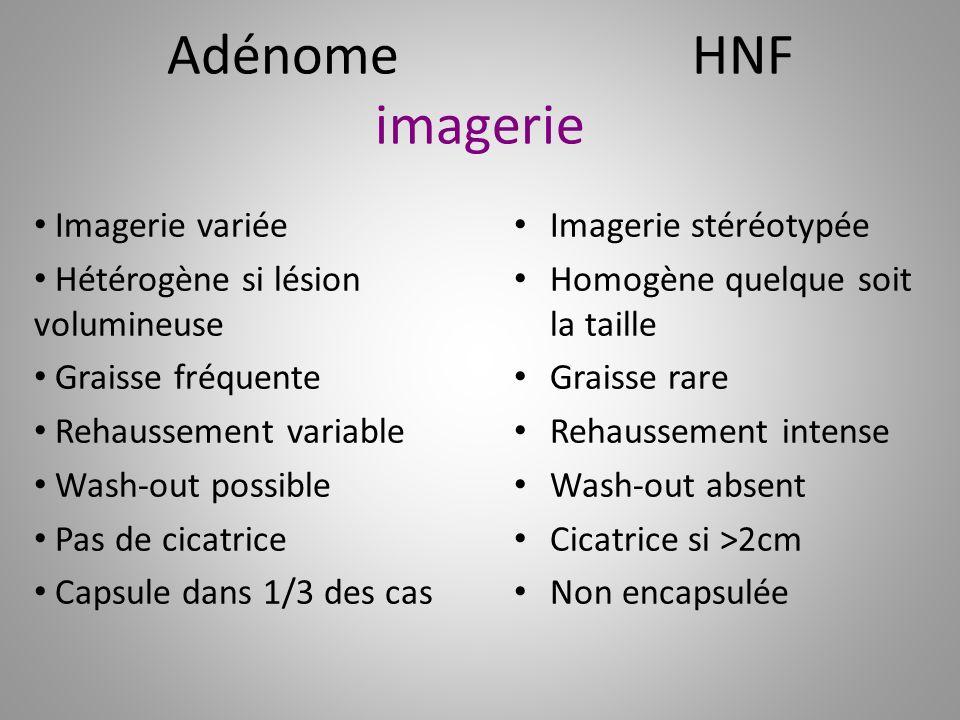 Adénome HNF imagerie Imagerie variée Hétérogène si lésion volumineuse Graisse fréquente Rehaussement variable Wash-out possible Pas de cicatrice Capsu