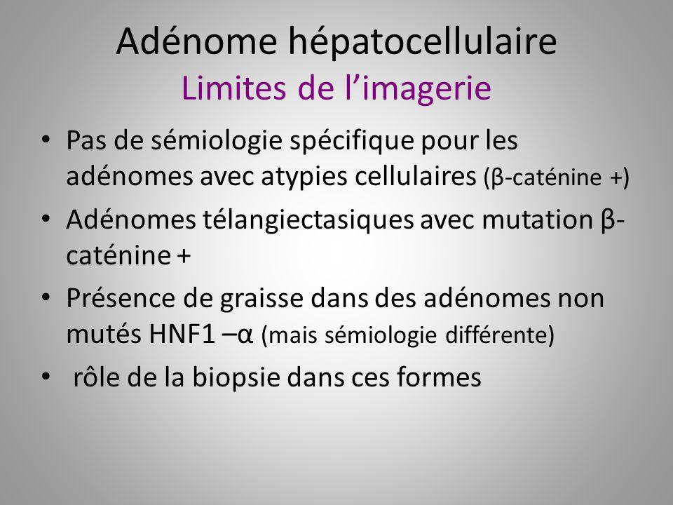 Adénome hépatocellulaire Limites de limagerie Pas de sémiologie spécifique pour les adénomes avec atypies cellulaires (β-caténine +) Adénomes télangie