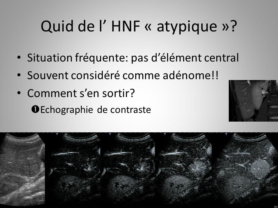 Quid de l HNF « atypique »? Situation fréquente: pas délément central Souvent considéré comme adénome!! Comment sen sortir? Echographie de contraste