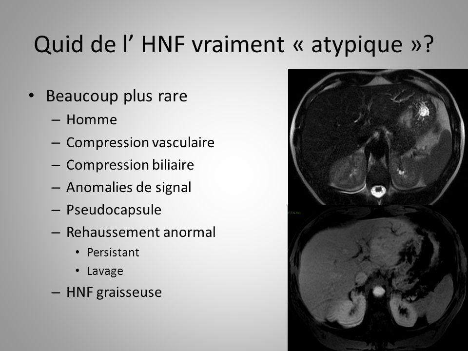 Quid de l HNF vraiment « atypique »? Beaucoup plus rare – Homme – Compression vasculaire – Compression biliaire – Anomalies de signal – Pseudocapsule