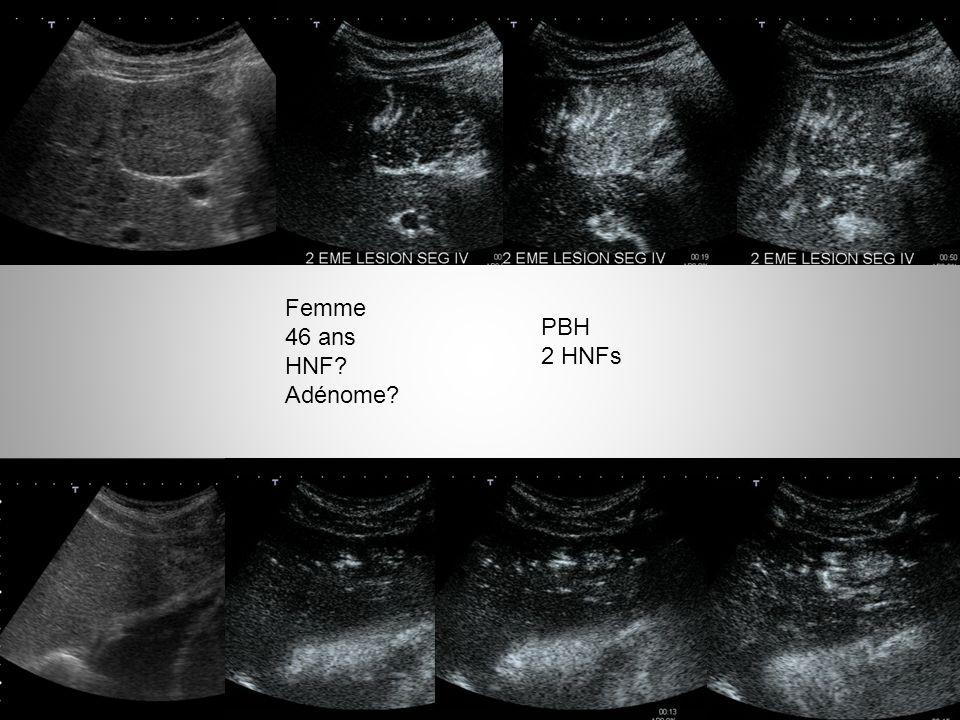 Adénome hépatocellulaire IRM et biopsie 47 adénomes hépatocellulaires avec IRM, biopsie et résection chirurgicale Classification IRM correcte dans 85% – Reproductibilité interobservateur kappa 0.86 Classification biopsie correcte (histo classique) dans 76.6% Classification biopsie correcte (immunohistochimie) dans 81.6% Ronot Hepatology 2011