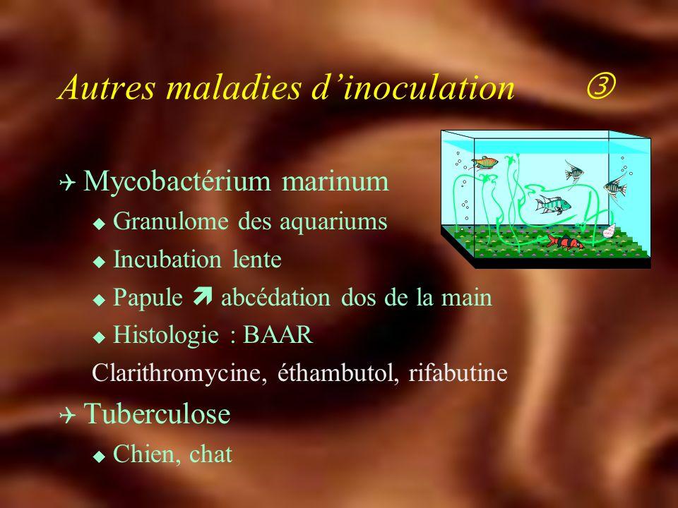 Autres maladies dinoculation Q Leptospirose u Grippe d été u Aspects cliniques : fièvre, myalgie, ictère, méningite, atteinte rénale u Sérologies (mic