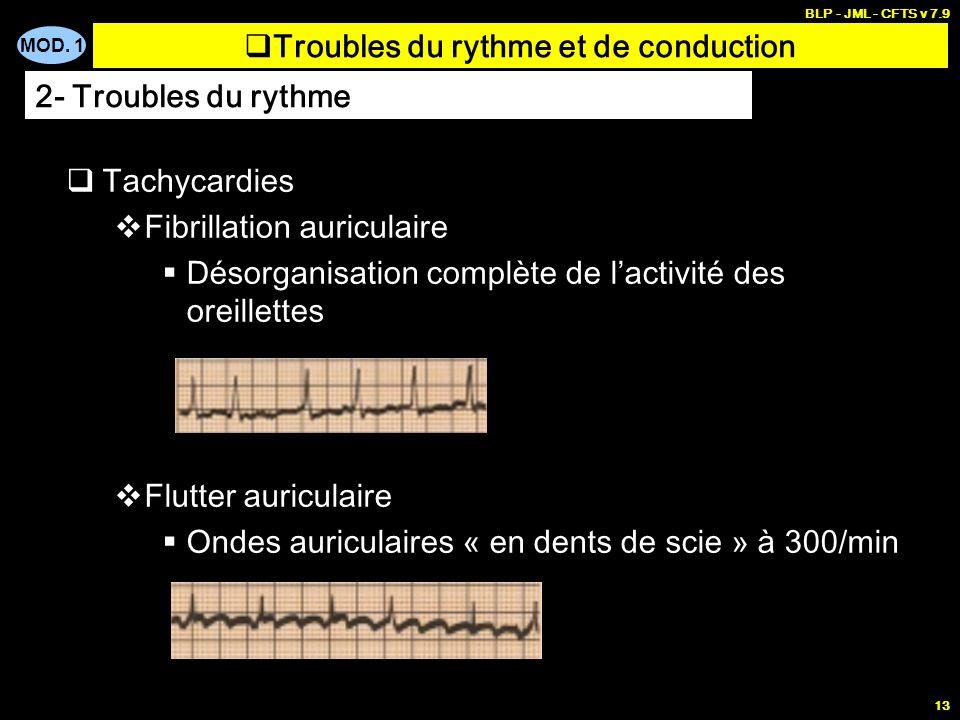 MOD. 1 BLP - JML - CFTS v 7.9 12 Extrasystoles Contractions cardiaques anormales survenant d manière prématurée au cours du cycle cardiaque Extrasysto