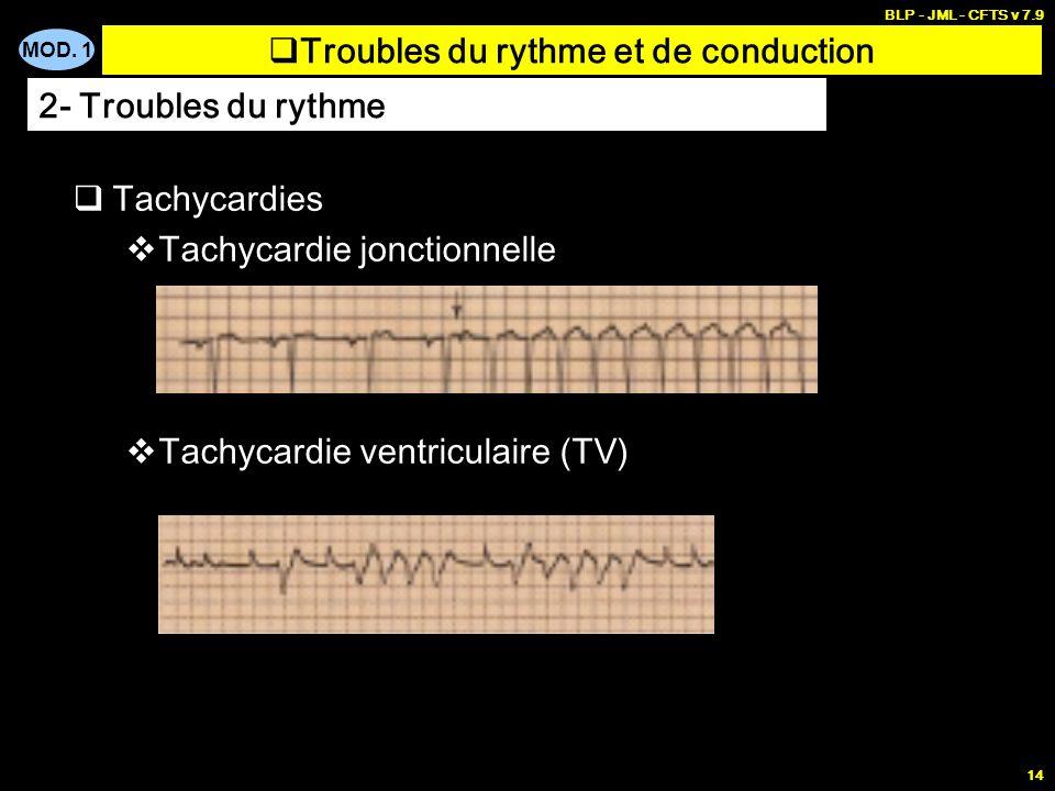 MOD. 1 BLP - JML - CFTS v 7.9 13 Tachycardies Fibrillation auriculaire Désorganisation complète de lactivité des oreillettes Flutter auriculaire Ondes