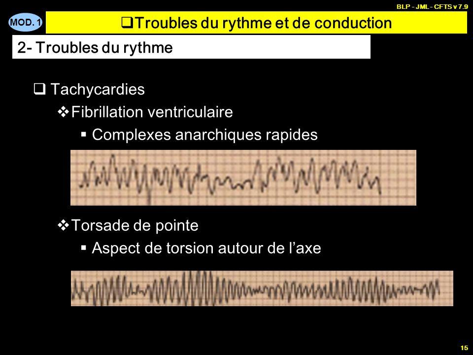 MOD. 1 BLP - JML - CFTS v 7.9 14 Tachycardies Tachycardie jonctionnelle Tachycardie ventriculaire (TV) Troubles du rythme et de conduction 2- Troubles