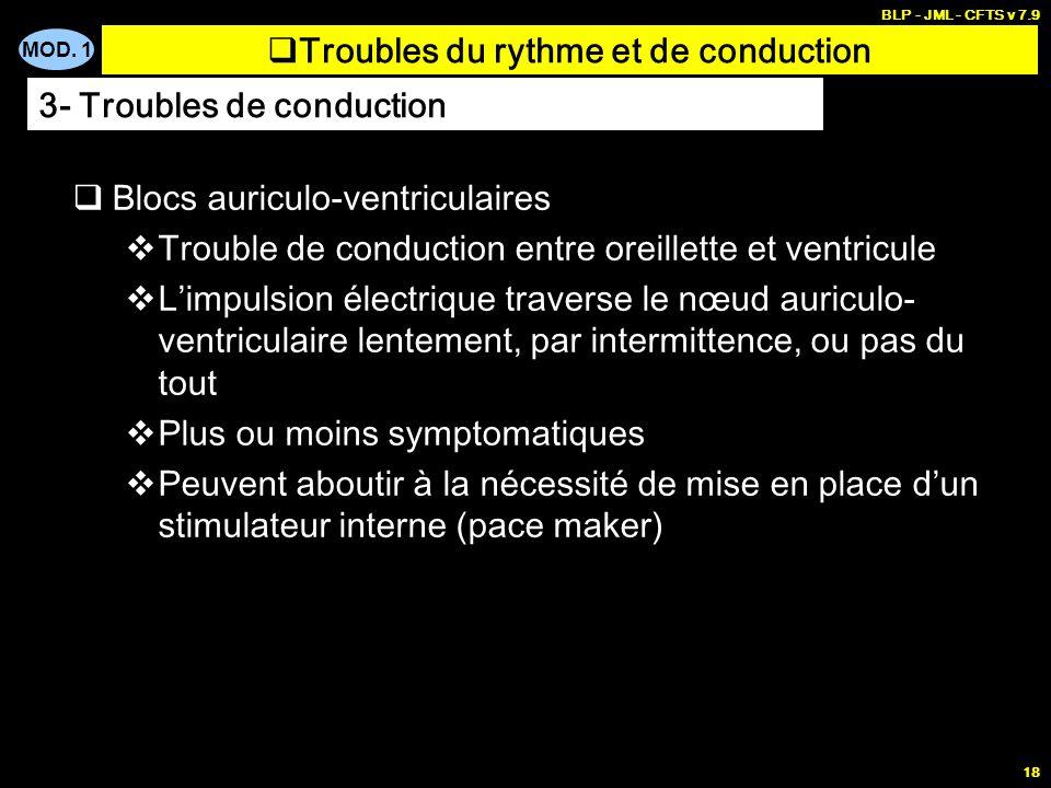 MOD. 1 BLP - JML - CFTS v 7.9 17 Transmission anormale (chemin anormal, vitesse anormale) de linflux nerveux en provenance du nœud sinusal Blocs auric