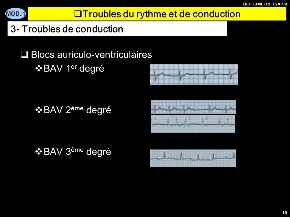 MOD. 1 BLP - JML - CFTS v 7.9 18 Blocs auriculo-ventriculaires Trouble de conduction entre oreillette et ventricule Limpulsion électrique traverse le