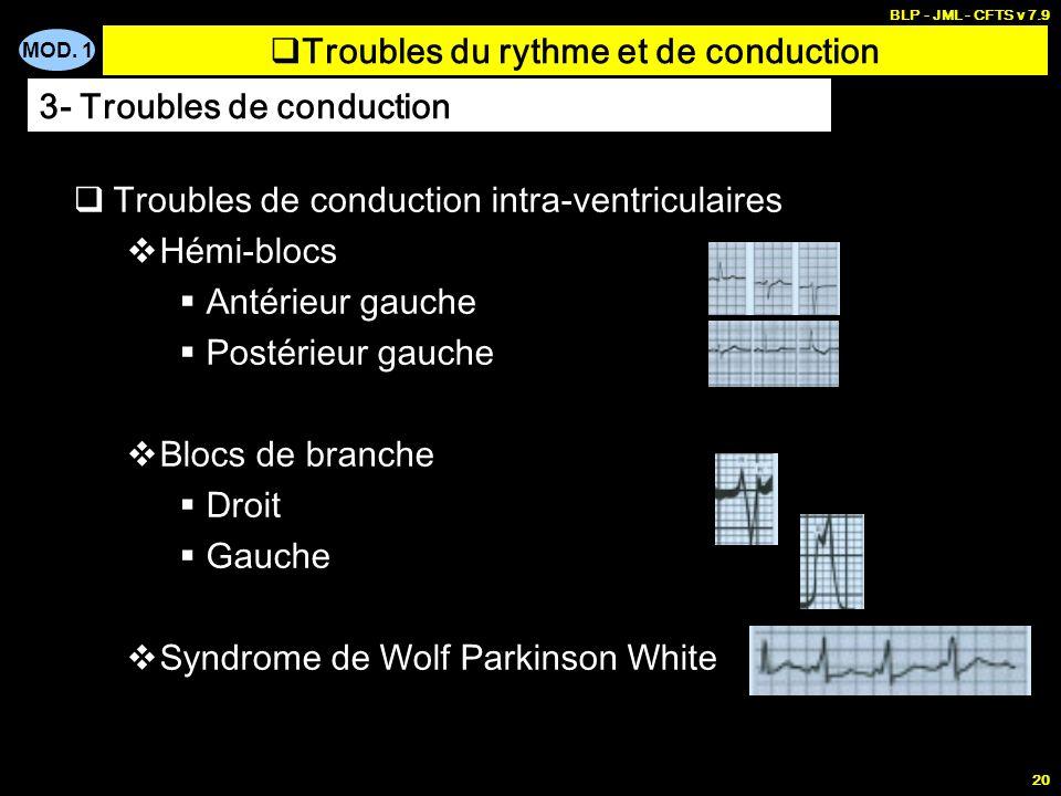 MOD. 1 BLP - JML - CFTS v 7.9 19 Blocs auriculo-ventriculaires BAV 1 er degré BAV 2 ème degré BAV 3 ème degré Troubles du rythme et de conduction 3- T