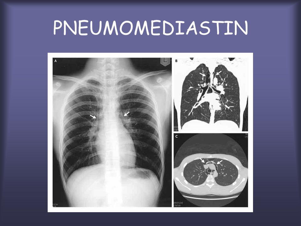 A.Pneumothorax spontané A.1.
