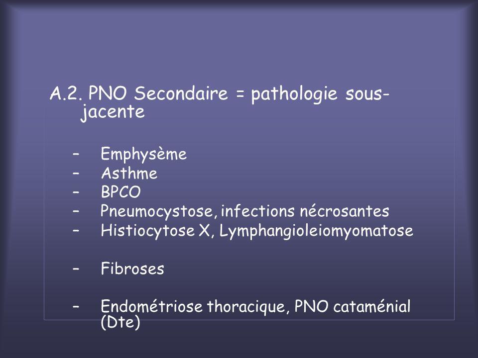 A.2. PNO Secondaire = pathologie sous- jacente –Emphysème –Asthme –BPCO –Pneumocystose, infections nécrosantes –Histiocytose X, Lymphangioleiomyomatos
