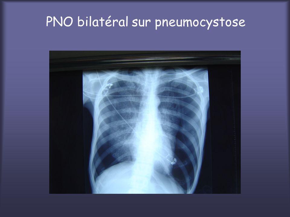 PNO bilatéral sur pneumocystose