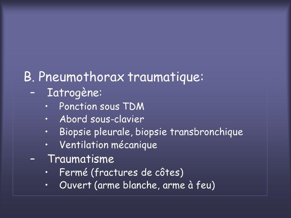 B. Pneumothorax traumatique: –Iatrogène: Ponction sous TDM Abord sous-clavier Biopsie pleurale, biopsie transbronchique Ventilation mécanique –Traumat