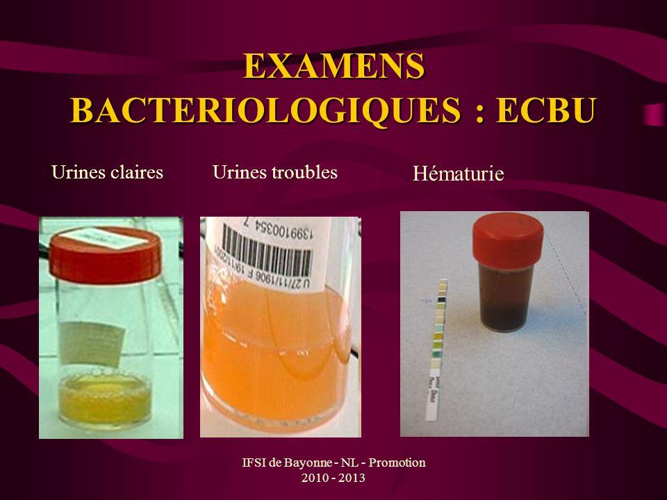 IFSI de Bayonne - NL - Promotion 2010 - 2013 EXAMENS BACTERIOLOGIQUES : ECBU Urines clairesUrines troubles Hématurie