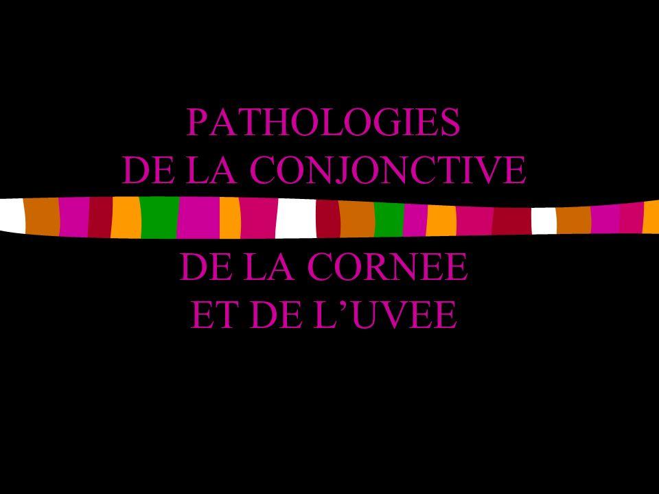 PATHOLOGIES DE LA CONJONCTIVE DE LA CORNEE ET DE LUVEE