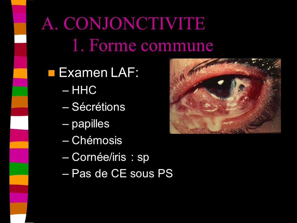 A. CONJONCTIVITE 1. Forme commune Examen LAF: –HHC –Sécrétions –papilles –Chémosis –Cornée/iris : sp –Pas de CE sous PS