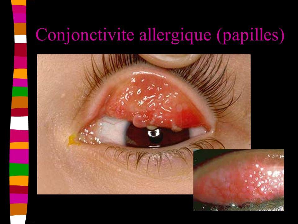 Conjonctivite allergique (papilles)