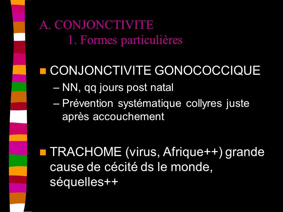 A. CONJONCTIVITE 1. Formes particulières CONJONCTIVITE GONOCOCCIQUE –NN, qq jours post natal –Prévention systématique collyres juste après accouchemen