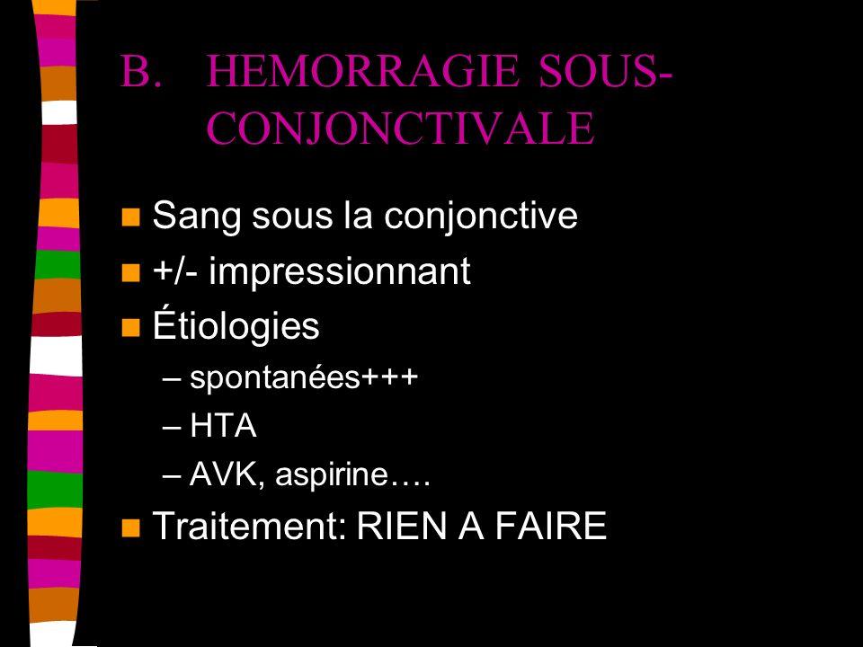 B.HEMORRAGIE SOUS- CONJONCTIVALE Sang sous la conjonctive +/- impressionnant Étiologies –spontanées+++ –HTA –AVK, aspirine…. Traitement: RIEN A FAIRE