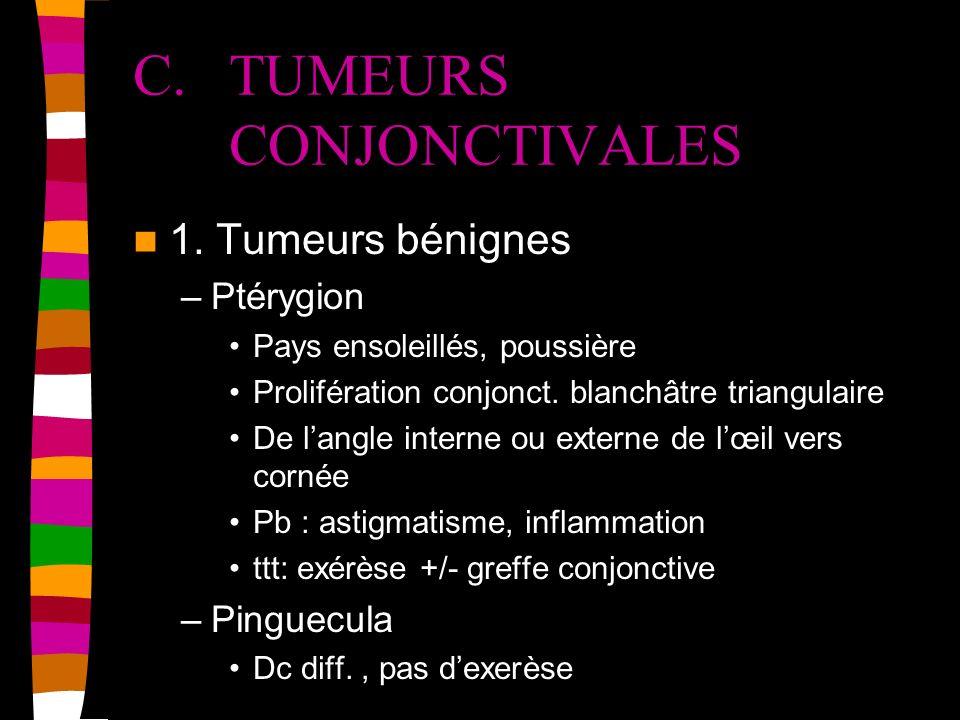 C. TUMEURS CONJONCTIVALES 1. Tumeurs bénignes –Ptérygion Pays ensoleillés, poussière Prolifération conjonct. blanchâtre triangulaire De langle interne