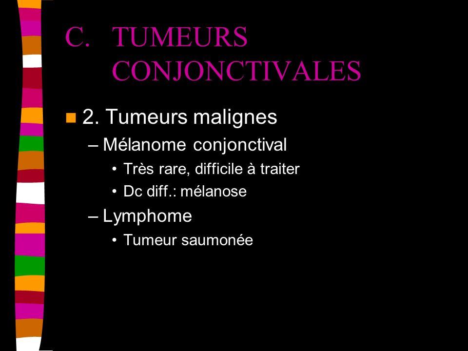 C. TUMEURS CONJONCTIVALES 2. Tumeurs malignes –Mélanome conjonctival Très rare, difficile à traiter Dc diff.: mélanose –Lymphome Tumeur saumonée
