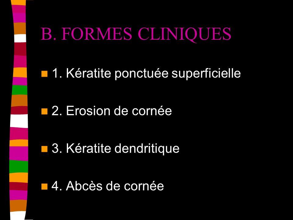 B. FORMES CLINIQUES 1. Kératite ponctuée superficielle 2. Erosion de cornée 3. Kératite dendritique 4. Abcès de cornée
