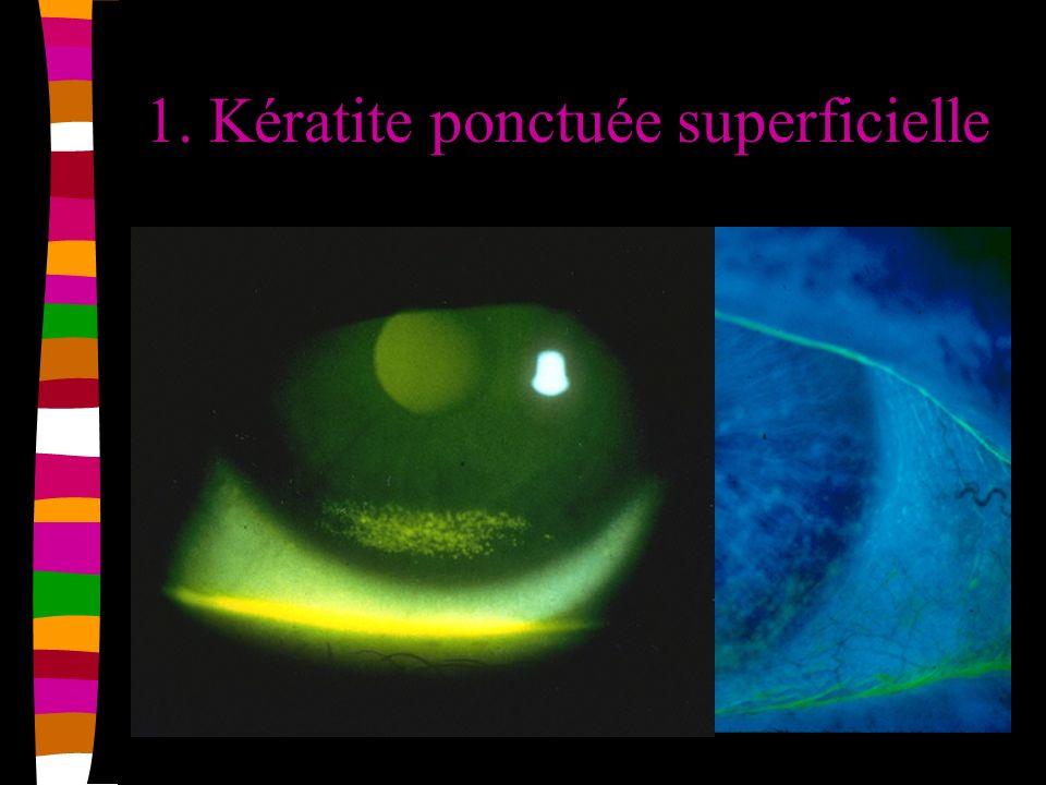 1. Kératite ponctuée superficielle