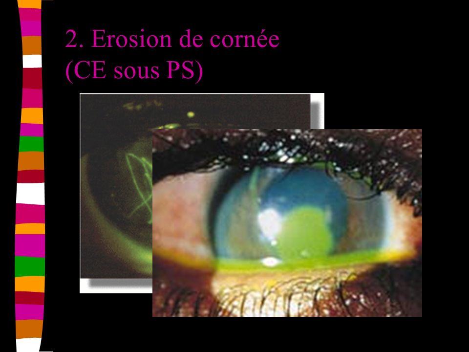 2. Erosion de cornée (CE sous PS)