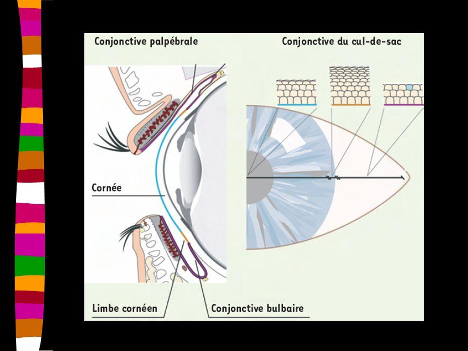 3. Kératite dendritique (Herpès++)