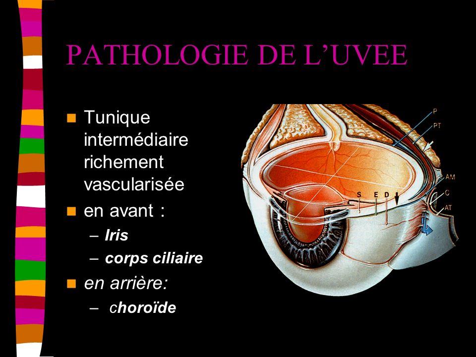 Tunique intermédiaire richement vascularisée en avant : –Iris –corps ciliaire en arrière: – choroïde