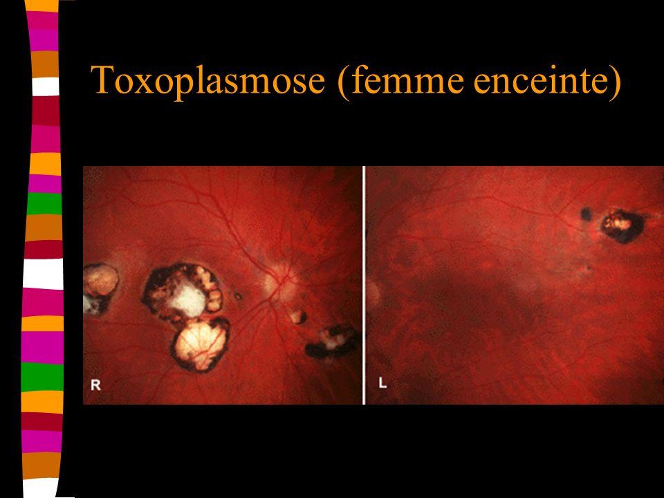 Toxoplasmose (femme enceinte)