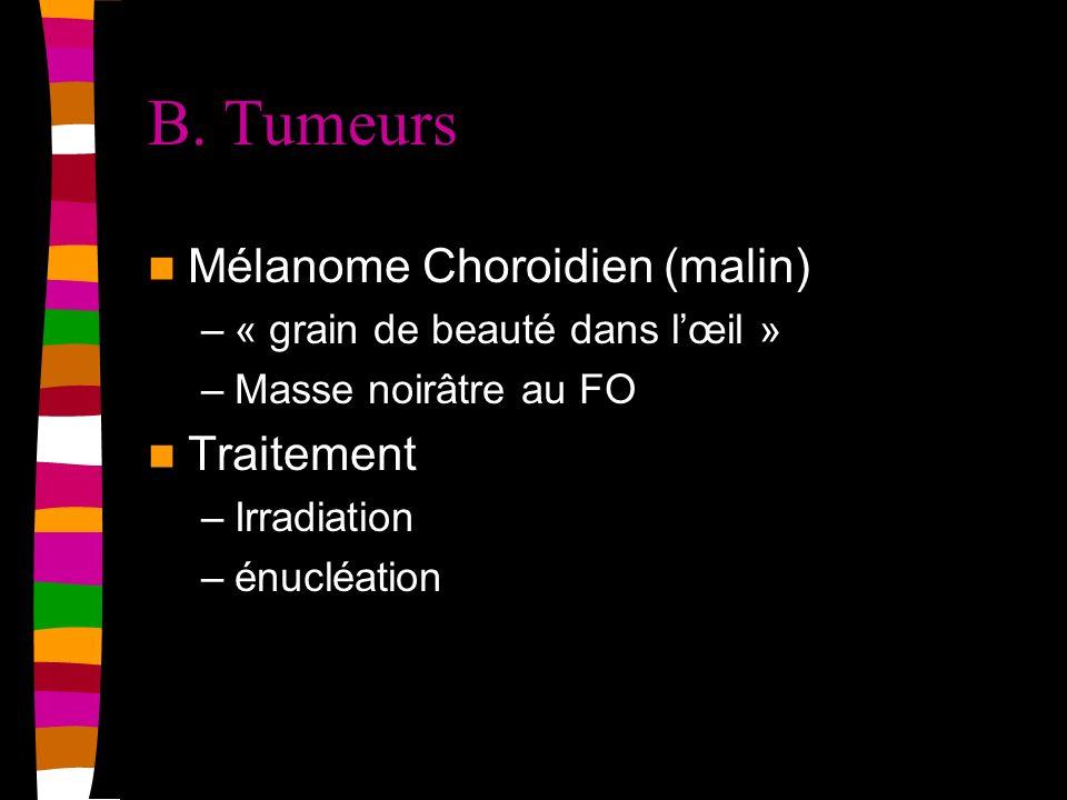 B. Tumeurs Mélanome Choroidien (malin) –« grain de beauté dans lœil » –Masse noirâtre au FO Traitement –Irradiation –énucléation