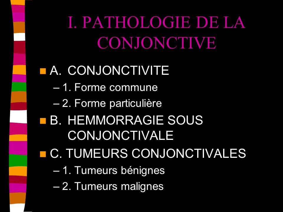 I. PATHOLOGIE DE LA CONJONCTIVE A.CONJONCTIVITE –1. Forme commune –2. Forme particulière B.HEMMORRAGIE SOUS CONJONCTIVALE C. TUMEURS CONJONCTIVALES –1