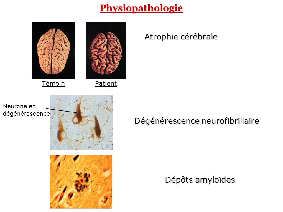 Dégénérescence neurofibrillaire Accumulation intraneuronale de paires de filaments appariés en hélice et composés de protéines tau anormalement phosphorylées -P-P -P-P -P-P Noyau Axone ARNmTauPHF dimérisationphosphorylation Tau-P Accumulation dans les corps cellulaires et les prolongements neuritiques des neurones Fonctions cellulaires perturbées et endommagées Mort cellulaire PHF: Paires Helicoïdales de Filaments