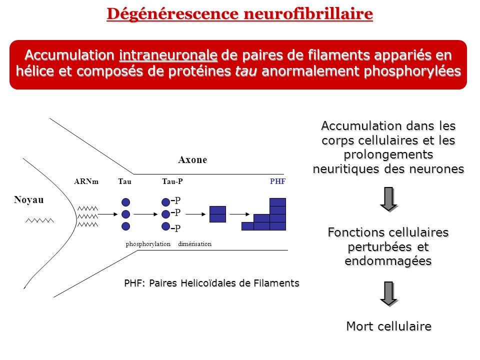 Dégénérescence neurofibrillaire Accumulation intraneuronale de paires de filaments appariés en hélice et composés de protéines tau anormalement phosph