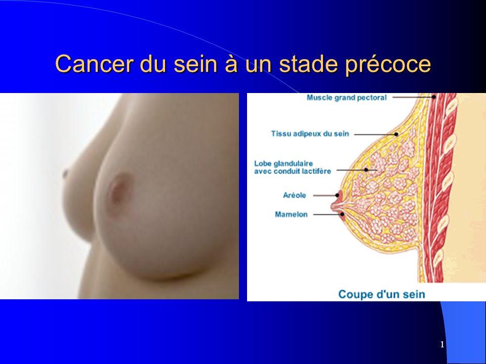 1 Cancer du sein à un stade précoce