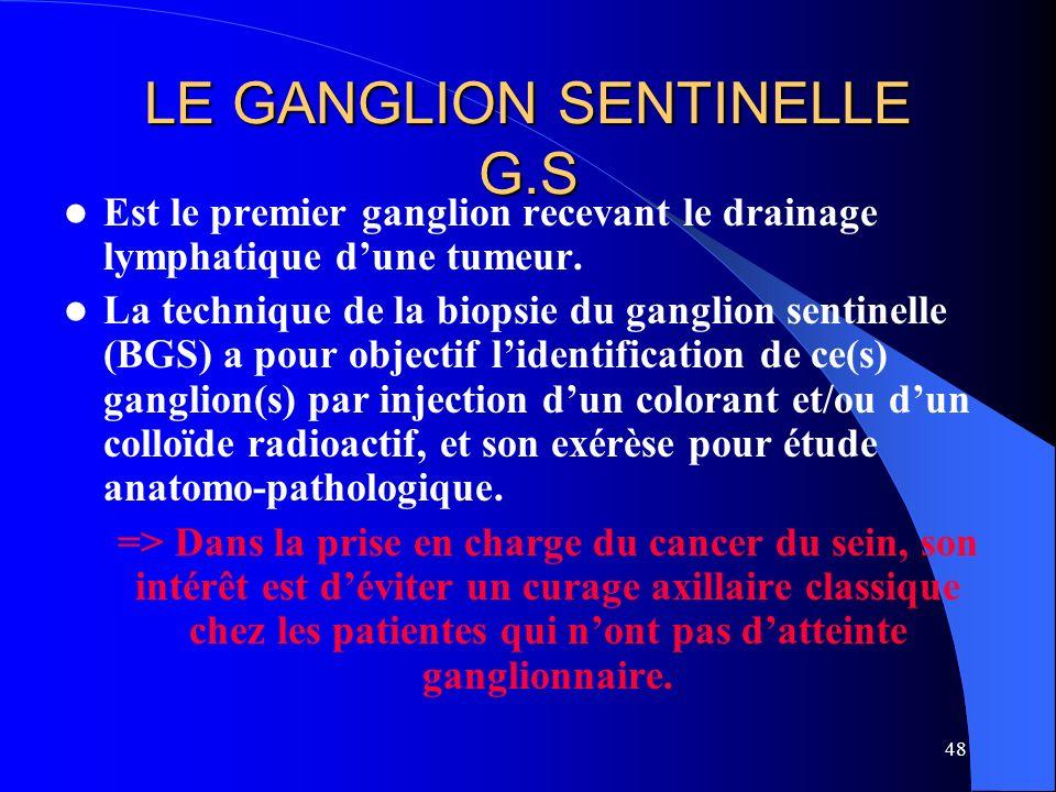 48 LE GANGLION SENTINELLE G.S Est le premier ganglion recevant le drainage lymphatique dune tumeur. La technique de la biopsie du ganglion sentinelle