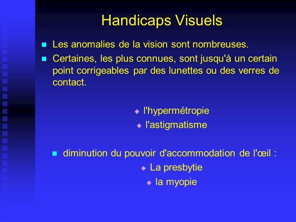 Handicaps Visuels Les anomalies de la vision sont nombreuses. Certaines, les plus connues, sont jusqu'à un certain point corrigeables par des lunettes