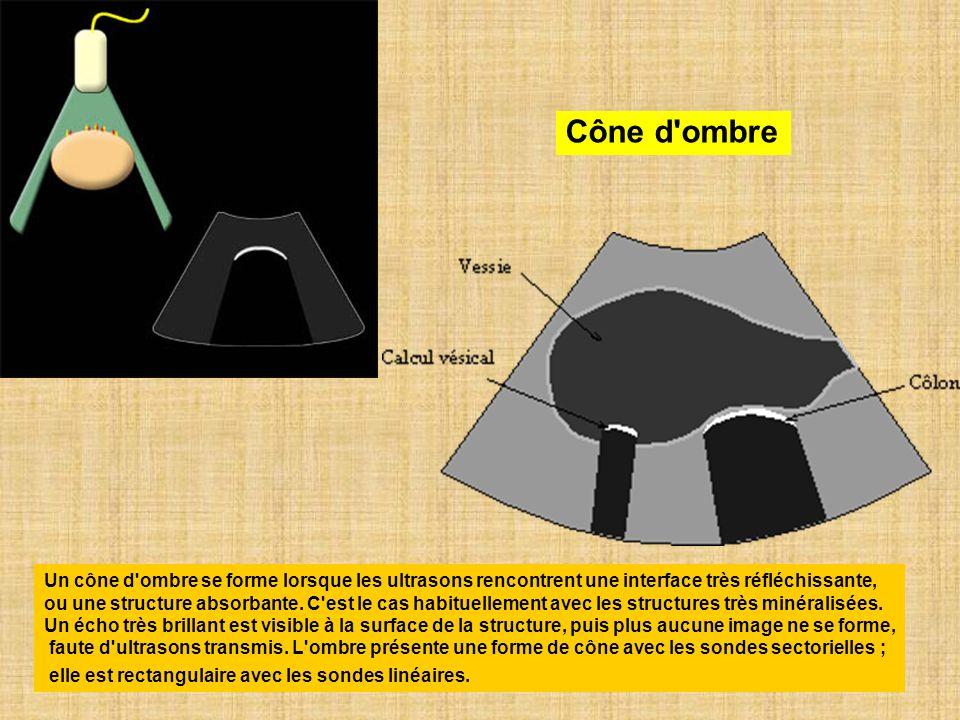 Cône d'ombre Un cône d'ombre se forme lorsque les ultrasons rencontrent une interface très réfléchissante, ou une structure absorbante. C'est le cas h