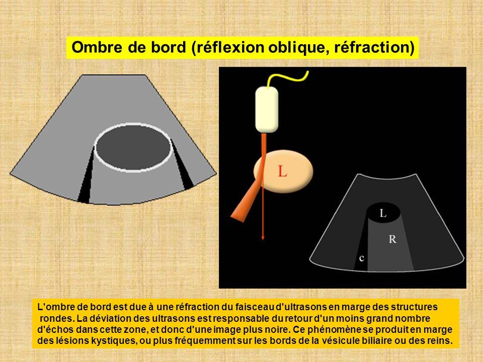 Ombre de bord (réflexion oblique, réfraction) L'ombre de bord est due à une réfraction du faisceau d'ultrasons en marge des structures rondes. La dévi