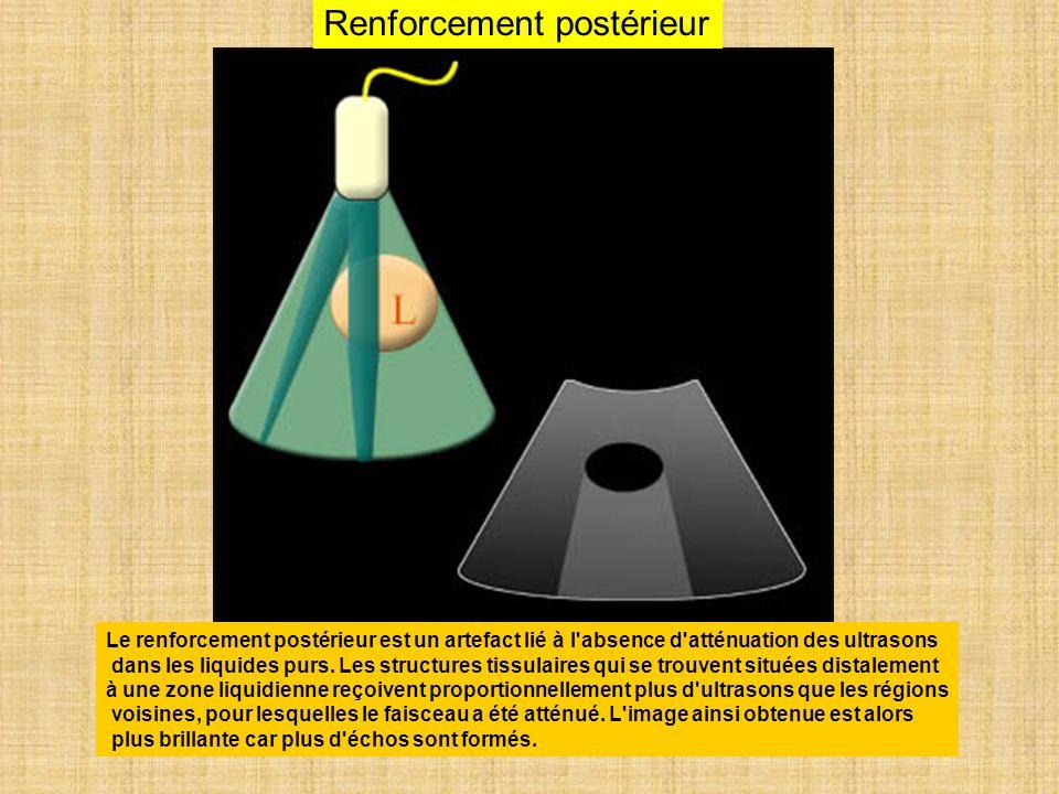 Renforcement postérieur Le renforcement postérieur est un artefact lié à l'absence d'atténuation des ultrasons dans les liquides purs. Les structures