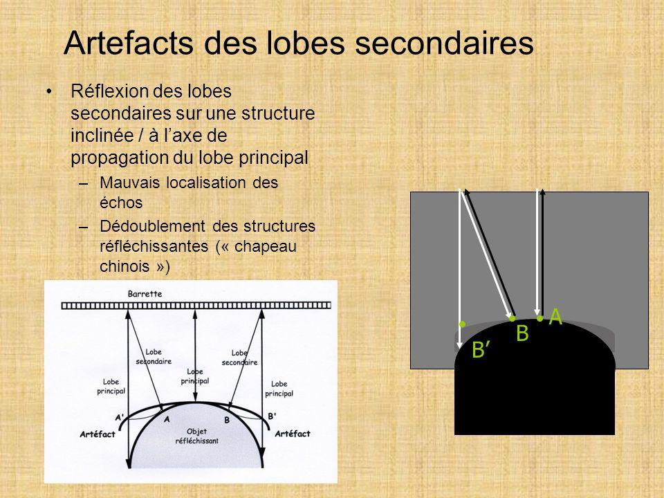 Artefacts des lobes secondaires Réflexion des lobes secondaires sur une structure inclinée / à laxe de propagation du lobe principal –Mauvais localisa