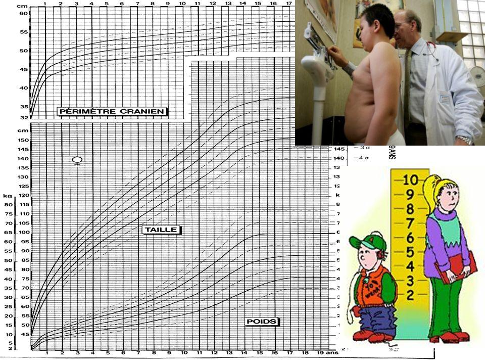 PREMIERE ETAPE FAIRE LE DIAGNOSTIC D OBESITE P (kg) T x T (m²) IMC = Obésité : BMI > 97ème percentile Adulte BMI > 30