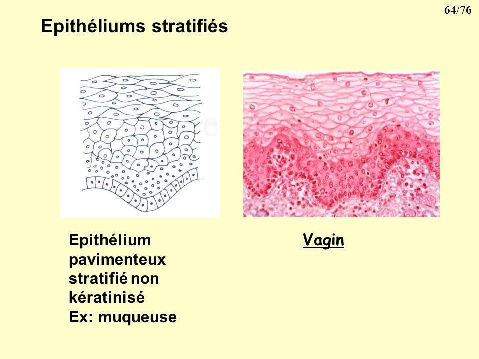 63/76 Epithéliums stratifiés Epithélium pavimenteux stratifié kératinisé Ex: peau Epithélium pavimenteux stratifié non kératinisé Ex: muqueuse